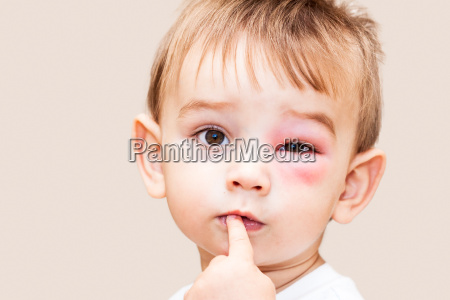 little boy niebezpieczne uzadlenia z osy