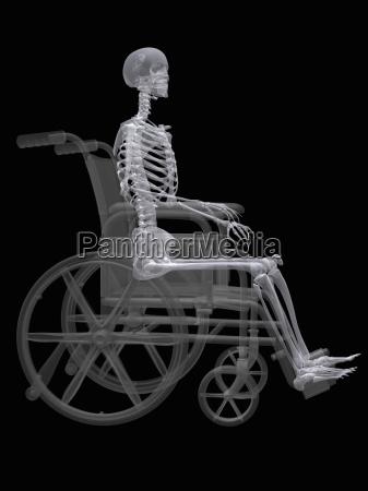 ilustracja szkielet siedzi na wozku inwalidzkim