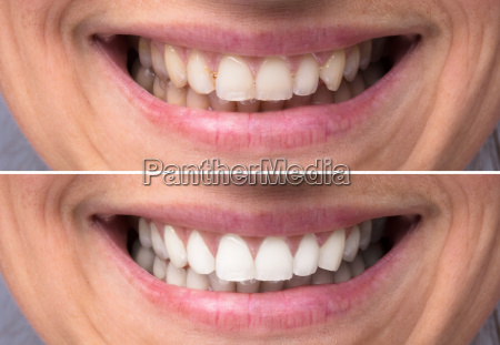 person, teeth, before, and, after, whitening - 23597010