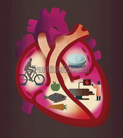 przekroj serca kontrastujace choroby serca i