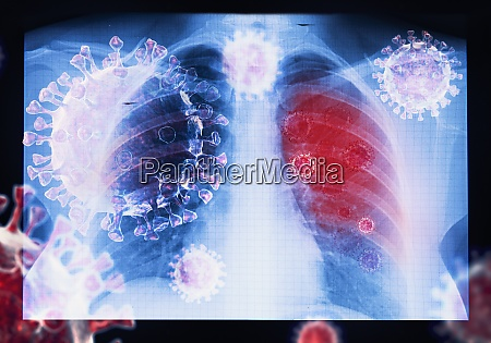 zakazenie wirusem choroby koronawirusowej covid 19