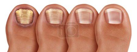 stopy, zdrowy, medycyna, medyczne, traktowanie, choroby - B303516270