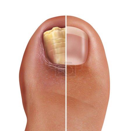 stopy, zdrowy, medycyna, Leczenie, Choroba, niezdrowe - B245907162